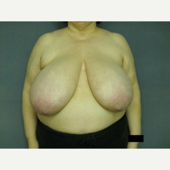 55-64 year old woman treated with Breast Reduction before 1576385