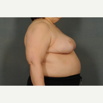 55-64 year old woman treated with Breast Reduction 1576385