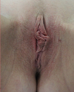 labiaplasty in 27 yrs female before 1271676