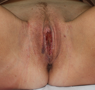 labiaplasty in 27 yrs female after 1271676