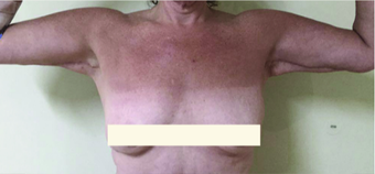 45-54 year old woman treated with Upper Body Lift (Torsoplasty and Arm Lift) before 3442490