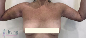45-54 year old woman treated with Upper Body Lift (Torsoplasty and Arm Lift) after 3442490