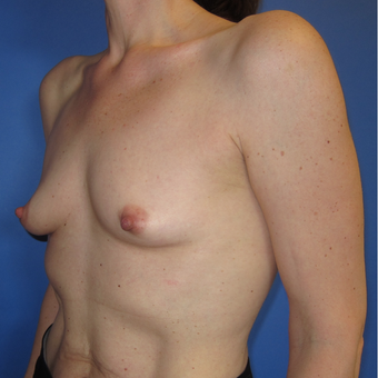 45-54 year old woman treated with Breast Augmentation (R. 286cc, L. 304cc) before 3309853