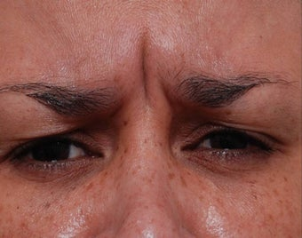 Female Treated for Forehead Wrinkles before 772010