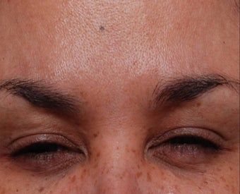Female Treated for Forehead Wrinkles after 772010