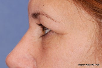 Eyelid Surgery before 1441882