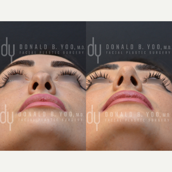 Revision Rhinoplasty before 3116245