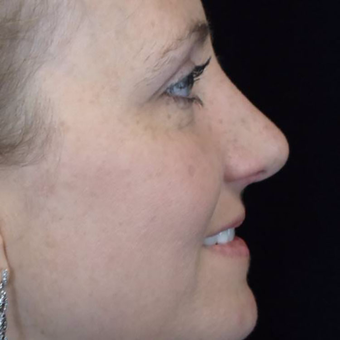 25-34 year old woman treated with Rhinoplasty after 3525961