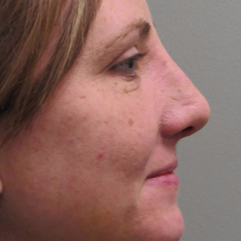 25-34 year old woman treated with Rhinoplasty before 3525961