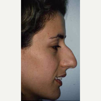 25-34 year old woman treated with Rhinoplasty before 3521267