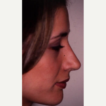 25-34 year old woman treated with Rhinoplasty after 3521267