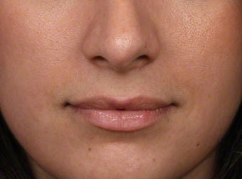 18-24 year old woman treated with Lip Augmentation before 2608104
