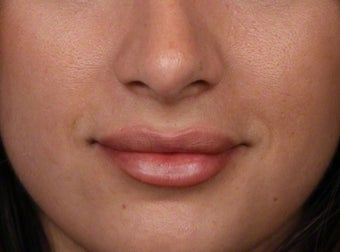 18-24 year old woman treated with Lip Augmentation after 2608104
