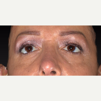 35-44 year old woman treated with Restylane before 3418976