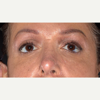 35-44 year old woman treated with Restylane after 3418976