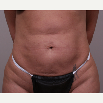 45-54 year old woman treated with Liposuction after 3142028