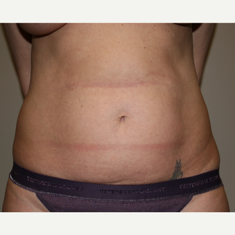 45-54 year old woman treated with Liposuction before 3142028