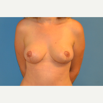 41 year old woman treated with breast Lift after 3123219