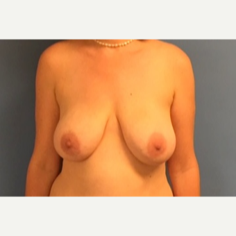 41 year old woman treated with breast Lift before 3123219