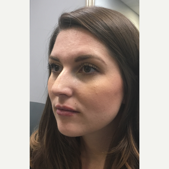25-34 year old woman treated with Botox after 3802211