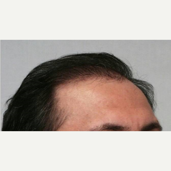 55-64 year old man treated with Hair Transplant after 3067469