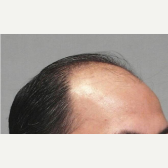 55-64 year old man treated with Hair Transplant before 3067469