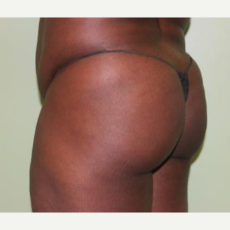 35-44 year old woman treated with Butt Augmentation before 3241579
