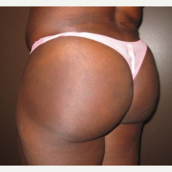 35-44 year old woman treated with Butt Augmentation after 3241579
