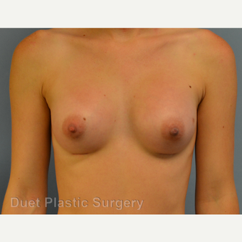 25-34 year old woman treated with Breast Augmentation after 3342187