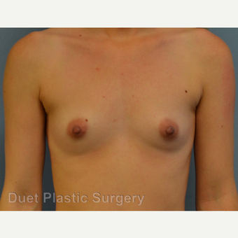 25-34 year old woman treated with Breast Augmentation before 3342187