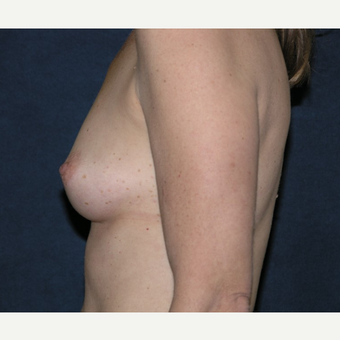 45-54 year old woman treated with Breast Implants before 3455533