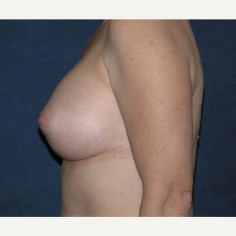 45-54 year old woman treated with Breast Implants after 3455533