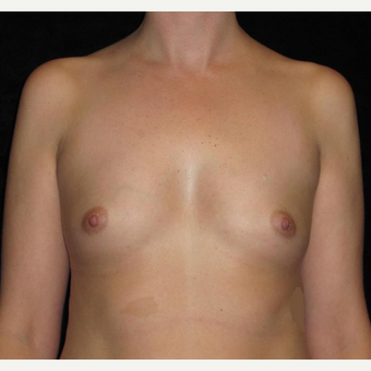 35 year old woman treated with Breast Augmentation before 3093122