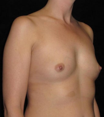 35 year old woman treated with Breast Augmentation 3093122