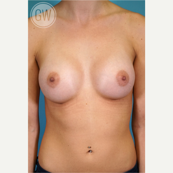 25-34 year old woman treated with Breast Augmentation after 3468728