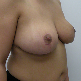 25-34 year old woman treated with Breast Lift after 3814527