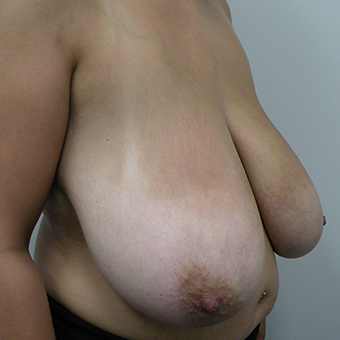 25-34 year old woman treated with Breast Lift before 3814527