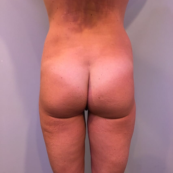 35-44 year old woman treated with Liposuction after 3850375