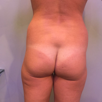 35-44 year old woman treated with Liposuction before 3850375