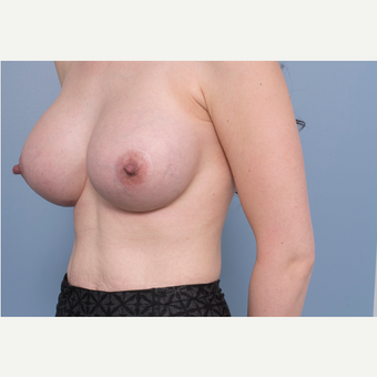 25-34 year old woman treated with Breast Implant Removal and Replacement after 3540173