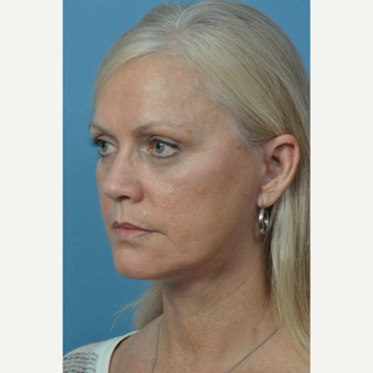 55-64 year old woman treated with Facelift after 3732408