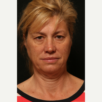 55-64 year old woman treated with Facelift before 2813983