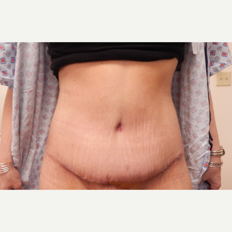 35-44 year old woman treated with Tummy Tuck after 3813834