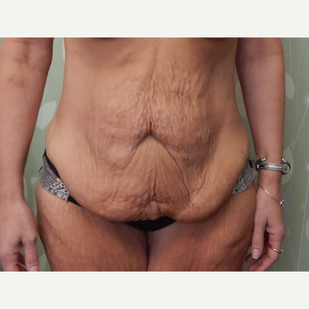 35-44 year old woman treated with Tummy Tuck before 3813834
