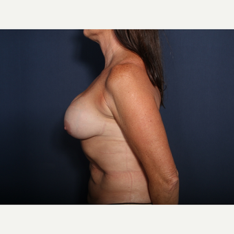 55-64 year old woman treated with Breast Implant Revision (view 2 of 2) before 3332989