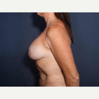 55-64 year old woman treated with Breast Implant Revision (view 2 of 2) after 3332989