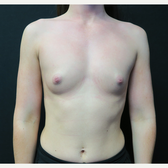 18-24 year old woman treated with Breast Augmentation before 3568527
