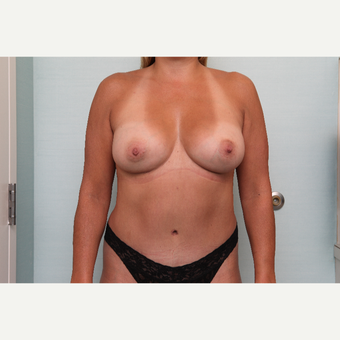 35-44 year old woman treated with Mommy Makeover after 3768087