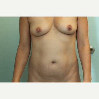 35-44 year old woman treated with Mommy Makeover before 3768087