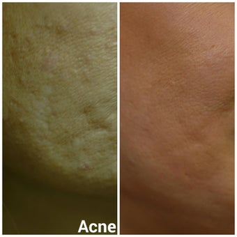 35-44 year old woman treated with Acne Scars Treatment